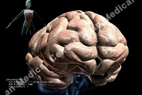 일과성 뇌허혈증